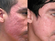 Acne Scar Removal at Riyaanz