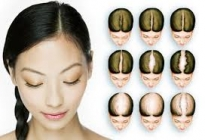 GETTING TO THE ROOTS OF HAIR LOSS IN WOMEN:TREATMENT AT RIYAANZ AESTHETIC HYDERABAD