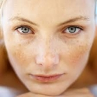 Freckles Treatment In Hyderabad