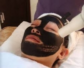 Carbon peel Treatment In Hyderabad